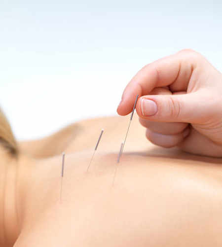 acupuncture.essendon
